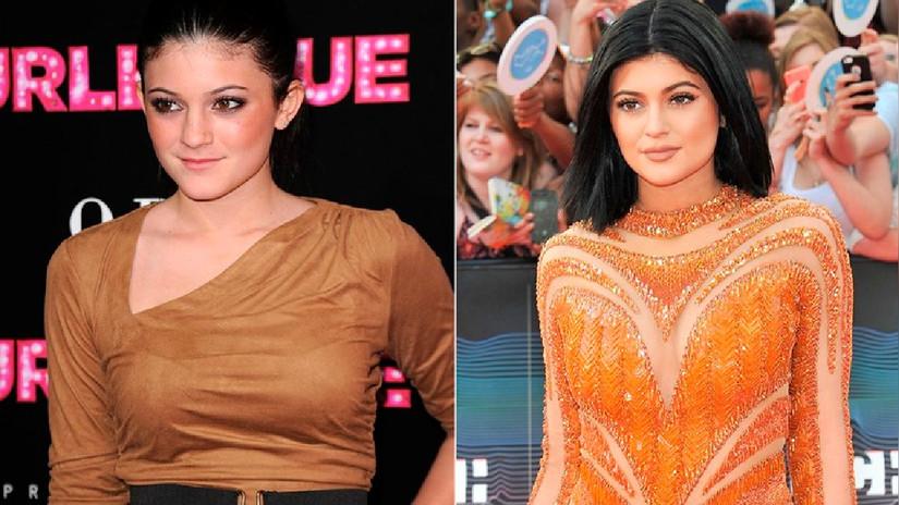 Así ha cambiado físicamente Kylie Jenner, la pequeña del clan Kardashian
